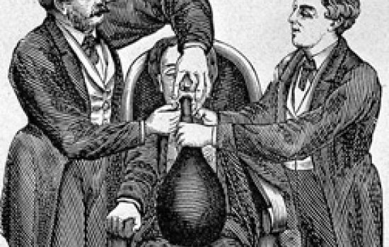 Two men give anaesthesia to another man seated in a chair with an anaestheic mask over his mouth