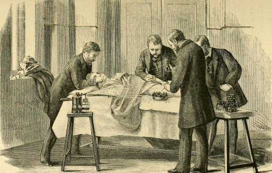 an operation using the antisepsis system with carbolic spray