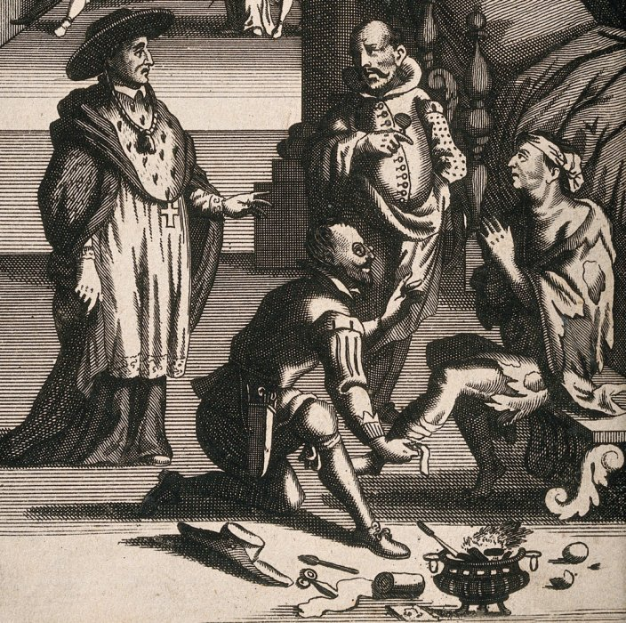 A surgeon bandaging a patients leg, with a cautery pot and tools in the foreground and watched by two wealthy men