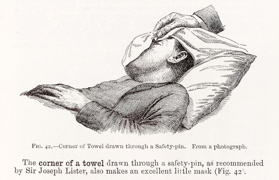 A man being give chloroform anaesthetic through a cloth over his mouth and nose