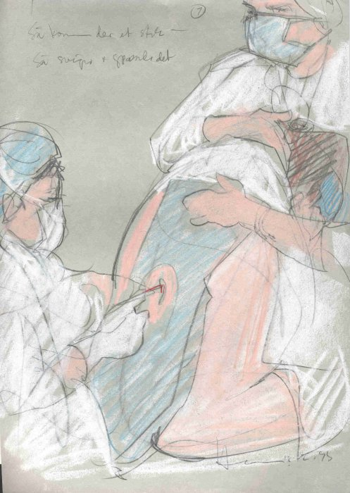 Sketch of a woman being given an epidural