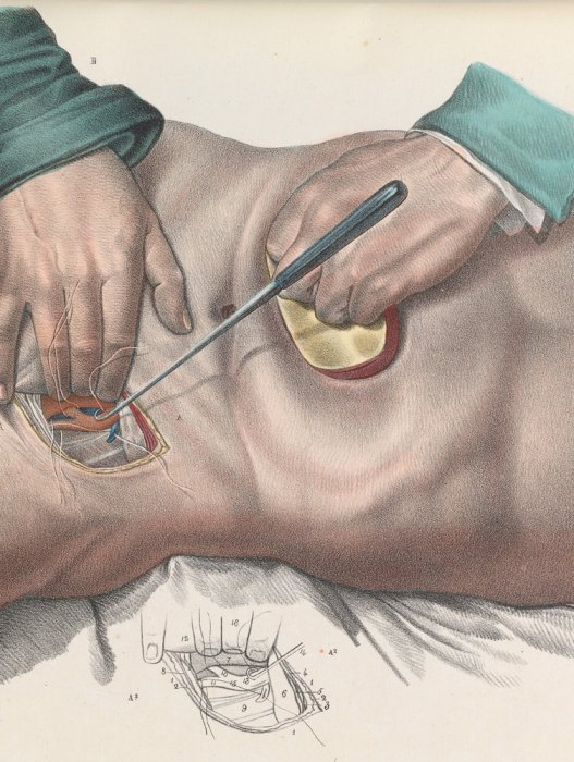 Close up of a pair of surgeons hands closing a blood vessel in the groin with a ligature