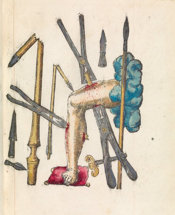 A wounded leg showing different weapons that could cause injury and clamps to limit blood loss