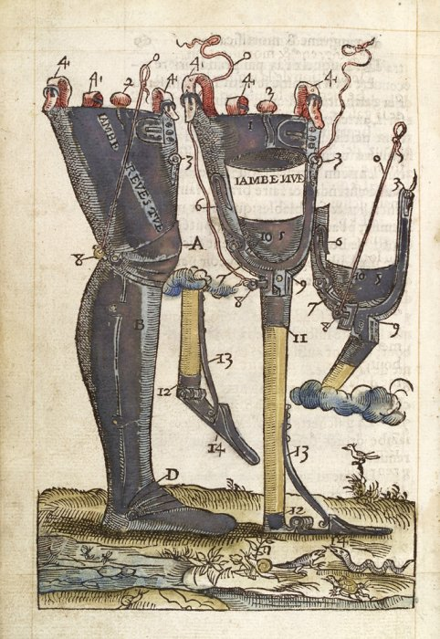 Prosthetic legs designed by Ambroise Pare, 1564.