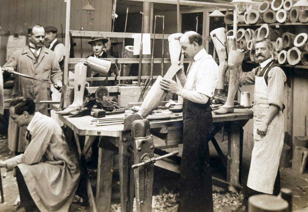 Prosthetic limb manufacture at St Marys Hospital Roehampton