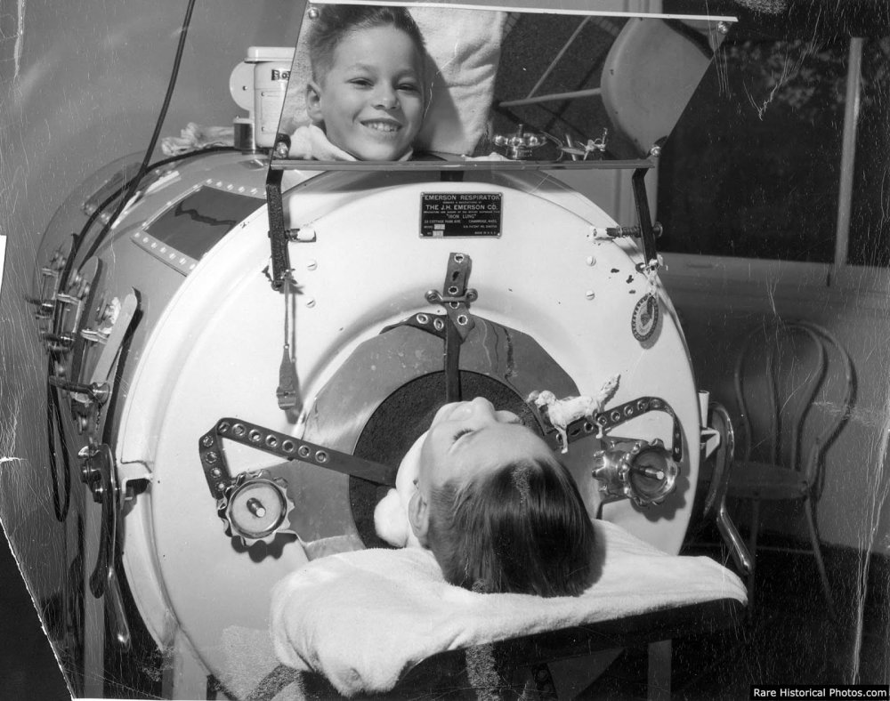 Boy in an iron lung, his smiling face is seen in a mirror attached to the machine, 1930s-1950s.