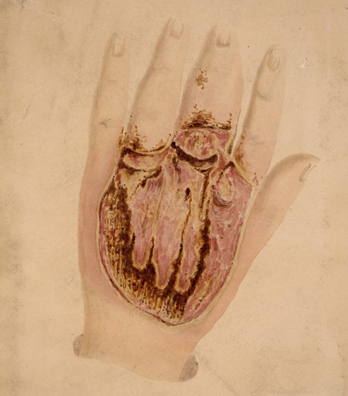 Watercolour sketch of the back of a hand with gangrene infection