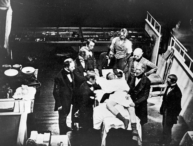 Photograph of an operation using ether at the Massachusetts General Hospital, 1847