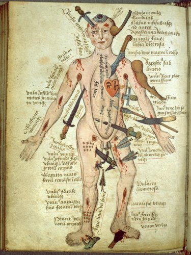 Illustration of a naked man showing the different kinds of wounds that can be inflicted by weapons on his body.