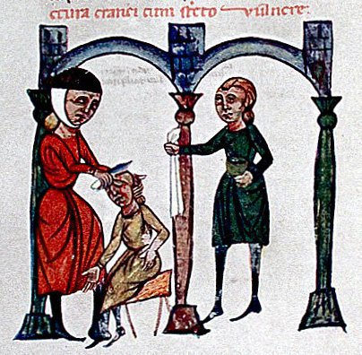 A medieval illustration of trephining