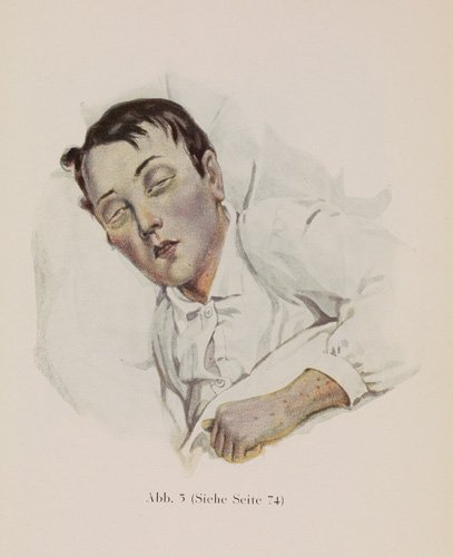 A man lying in bed with typhoid fever