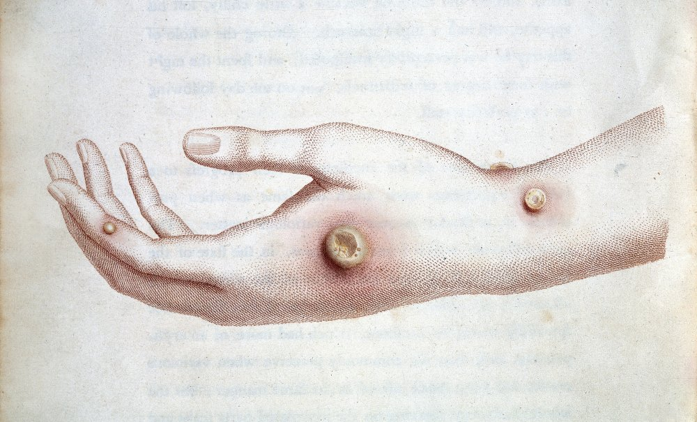 Drawing of Sarah Nemes' hand infected with cowpox